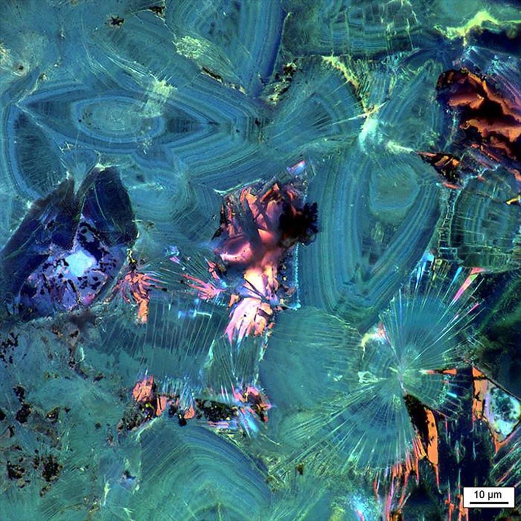 растворение камни в почках фото